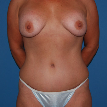25-34 year old woman treated with Panniculectomy after 2879517