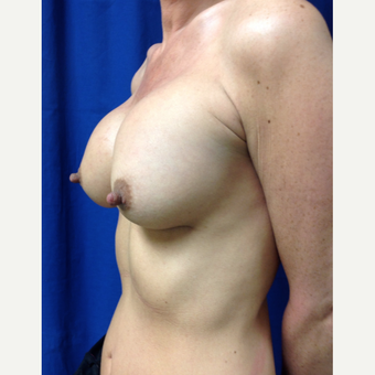 35-44 year old woman treated with Breast Augmentation after 3360947