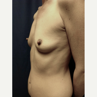 35-44 year old woman treated with Breast Augmentation before 3360947