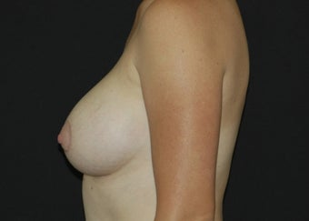 Breast Lift after 949212
