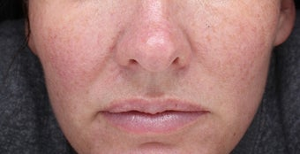 35-44 year old woman treated with Injectable Fillers before 3644421