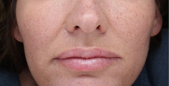 35-44 year old woman treated with Injectable Fillers after 3644421