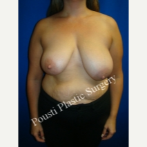35-44 year old woman treated with Breast Reduction before 3665804