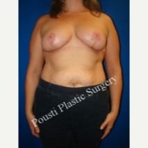 35-44 year old woman treated with Breast Reduction after 3665804