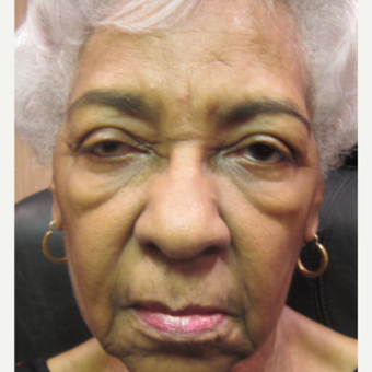 65-74 year old woman treated with Ptosis Surgery, severe eye asymmetry and bags under eyes