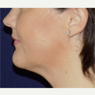 35-44 year old woman treated with Vaser Liposuction after 3517953