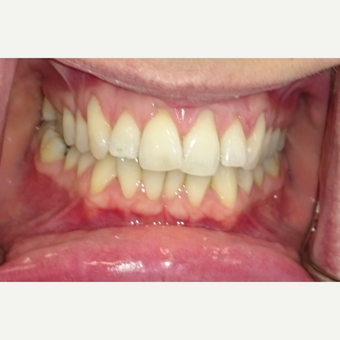 35-44 year old woman treated with Invisalign before 3854275