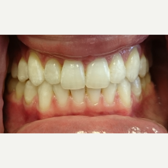 35-44 year old woman treated with Invisalign after 3854275