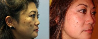 Treatment of Melasma before 666766