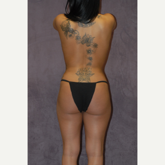 25-34 year old woman treated with Butt Augmentation after 2742266