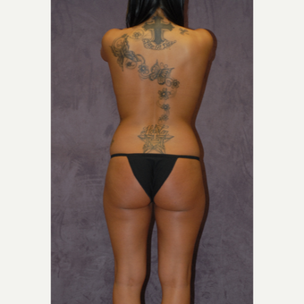 25-34 year old woman treated with Butt Augmentation before 2742266