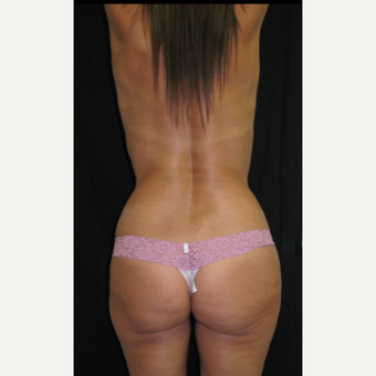 45-54 year old woman treated with Brazilian Butt Lift before 2847656