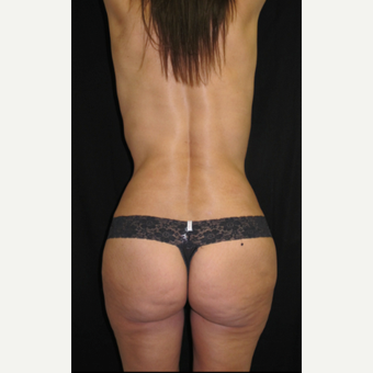 45-54 year old woman treated with Brazilian Butt Lift after 2847656