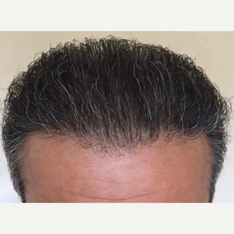 55-64 year old man treated with FUE Hair Transplant after 3080160