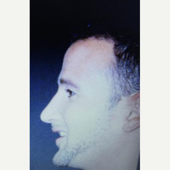 35-44 year old man treated with Rhinoplasty after 3260880
