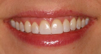 Deep bleaching and porcelain veneers after 283855