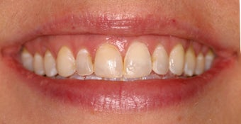 Deep bleaching and porcelain veneers before 283855