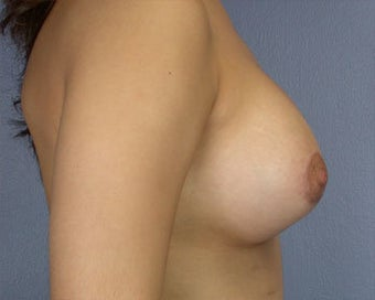 Breast Asymmetry Correction after 281321