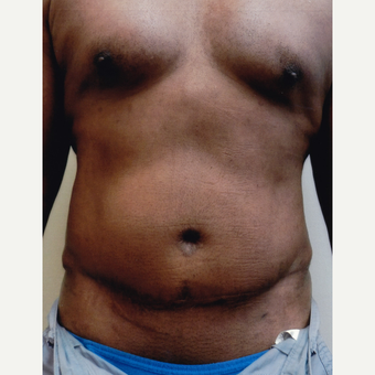 55-64 year old man treated with Tummy Tuck after 3603707