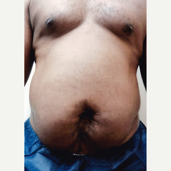 55-64 year old man treated with Tummy Tuck before 3603707