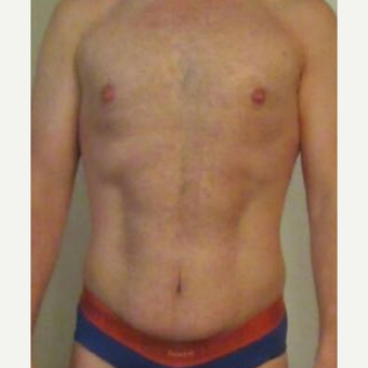 35-44 year old man treated with Mini Tummy Tuck and Liposuction chest, waist, back after 3848431