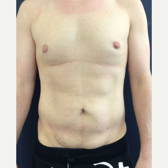 35-44 year old man treated with Mini Tummy Tuck and Liposuction chest, waist, back before 3848431