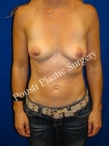 Breast Implant Removal after 1014771