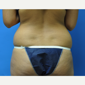 27 year old woman treated with Liposuction of Flanks before 2956396