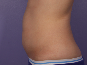 CoolSculpting to Abdomen after 581864