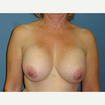 55 year old woman treated with Breast Implant Revision before 2618726