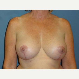 55 year old woman treated with Breast Implant Revision after 2618726