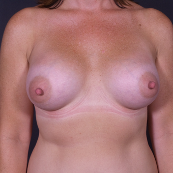 35-44 year old woman treated with Breast Augmentation after 3100958
