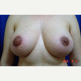 Breast Lift with Replacement of Breast Implants before 2989454