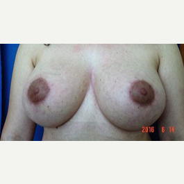 Breast Lift with Replacement of Breast Implants after 2989454