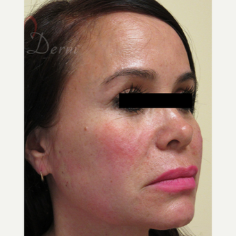 45-54 year old woman treated with Thread Lift in lower and mid-face after 3422116