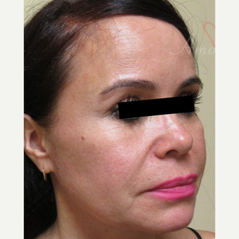 45-54 year old woman treated with Thread Lift in lower and mid-face before 3422116