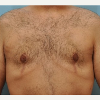 25-34 year old man treated with Male Breast Reduction after 3488233