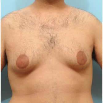 25-34 year old man treated with Male Breast Reduction before 3488233