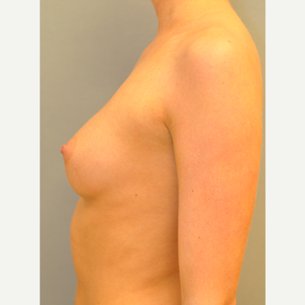 25-34 year old woman treated with Breast Augmentation before 3842339