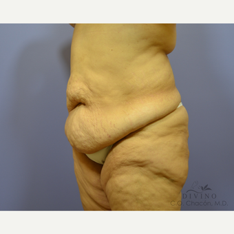 45-54 year old woman treated with Tummy Tuck before 3415722