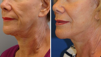 Mid Face Cheek Lift before 1360169