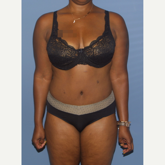 35-44 year old woman treated with Tummy Tuck after 3581251