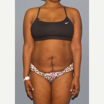 35-44 year old woman treated with Tummy Tuck before 3581251