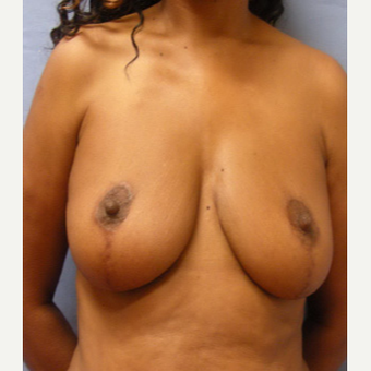 45-54 year old woman treated with Breast Lift before 3604953