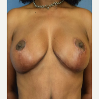 45-54 year old woman treated with Breast Lift after 3604953