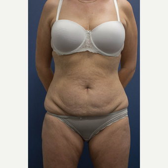 45-54 year old woman treated with Tummy Tuck before 3739600