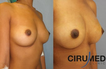 Fat transfer breast augmentation using BodyJet EVO after 1333066