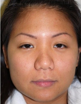 25-34 year old woman treated with Asian Rhinoplasty before 3259287