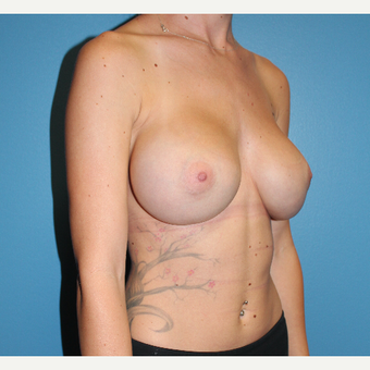 25-34 year old woman treated with Breast Augmentation after 3461950