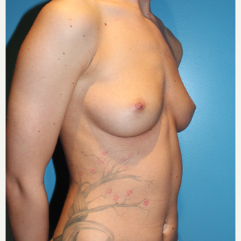 25-34 year old woman treated with Breast Augmentation before 3461950